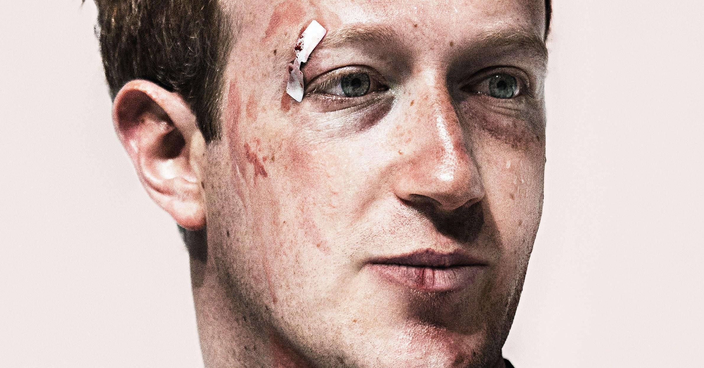 Zuckerberg bruised